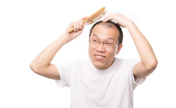 禿げる人 特徴
