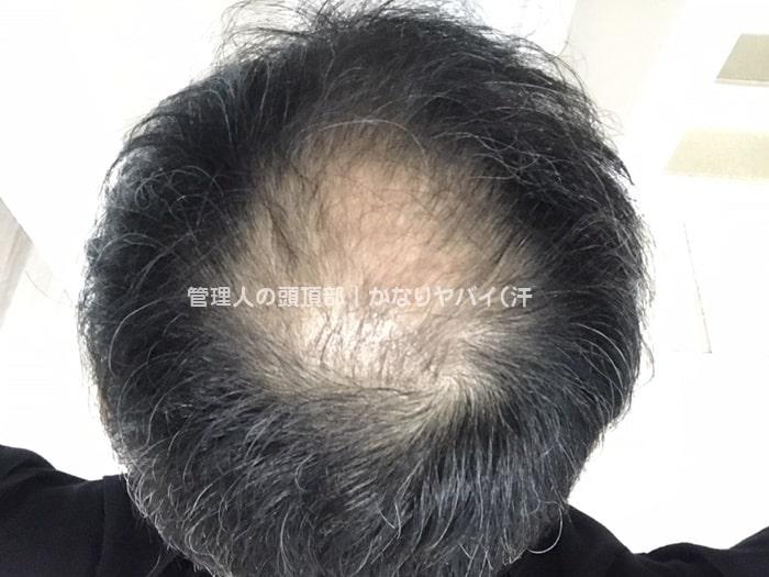 禿げる人の共通点